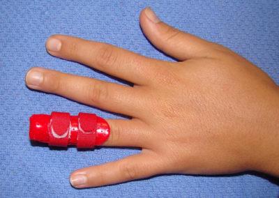 Ergotherapie: Nachbehandlung nach operativen Eingriff