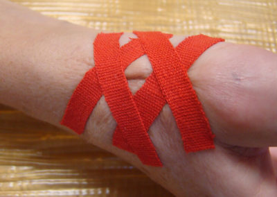 Narbenbehandlung in der Handtherapie & Handrehabilitation